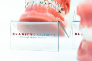 Clarity Advanced Clear Braces 24 5 300x200 - Clarity-Advanced-Clear-Braces-24-5