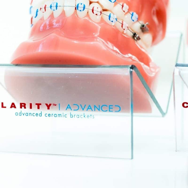 Clarity Advanced Clear Braces 24 5 800x800 - 3M Clarity Clear Braces
